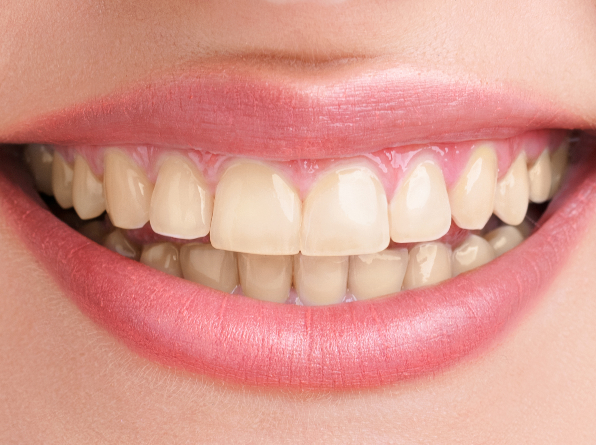 beljenje zuba novi sad