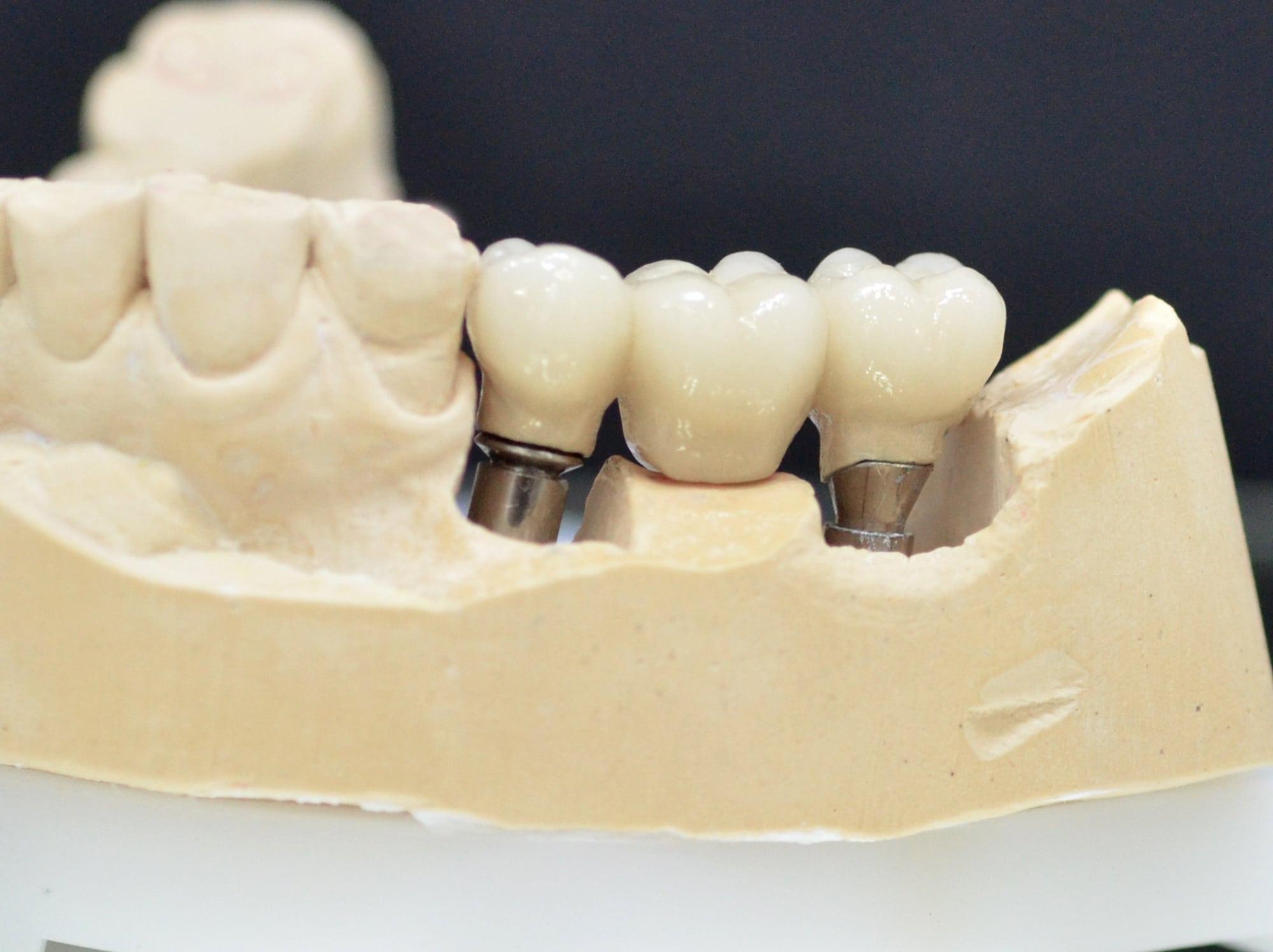 Krunice na implantima Novi Sad