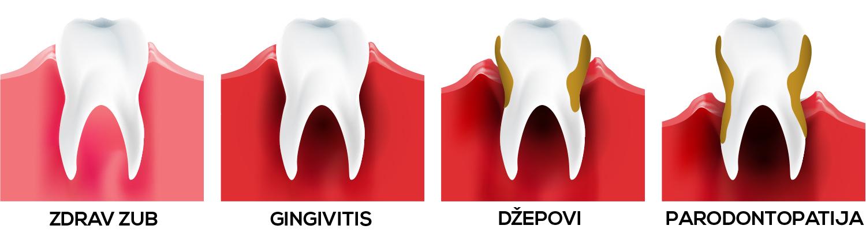 parodontolog novi sad