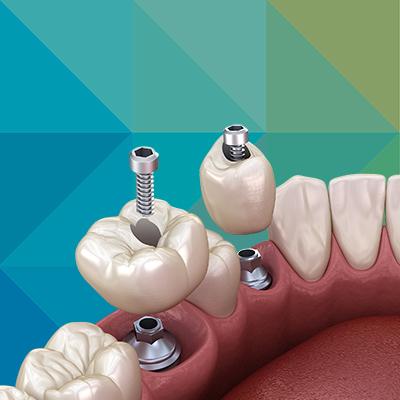 zubni implanti novi sad